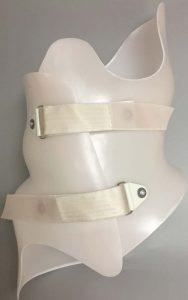 Boston Brace RC (Rigo-Cheneau) Scoliosis Brace